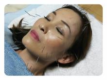 美容鍼施術時のお化粧について