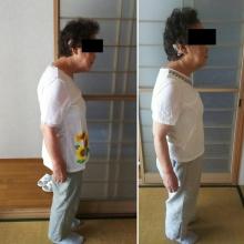 姿勢を改善して症状を改善