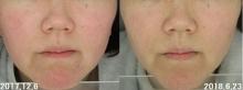 「肌悩みは敏感肌と赤みと毛穴とたるみです」半信半疑でカウンセリングに …6カ月後